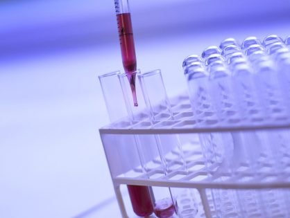 Biomarcadores del cáncer de próstata